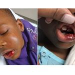 Baltimore Teacher Arrested For Breaking 7-Yr-Old Jaw & Knocking His Teeth Out