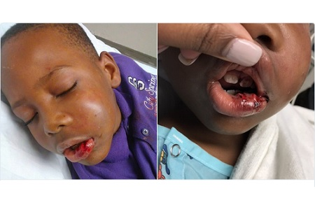 baltimore-teacher-arrested-for-breaking-7-yr-old-jaw-knocking-his-teeth-out